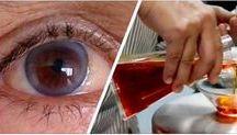 migliora la vista