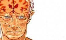 sağlık alzheimer