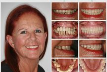 Before and After Dental Implants / Are you struggling to chew your food? Do you have to watch what you eat because of your teeth? Are you fed up with dentures which are loose and moving about in your mouth? You do not have to struggle like this nowadays. Dental Implants could help you with your chewing, stabilise your bite, correct your smile and generally boost your confidence and improve your life. Contact Corinne on contact@silveroaksdentalclinic.co.za