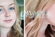 About Me / My Skin / My acne, skincare and accutane journey