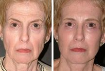 The Inner Secrets To Facial Toning And Face Workouts For Biological Facelifts / Facial Yoga Workout Solution And Non-Invasive Facelift Workout Regimens