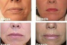 Botox Natural