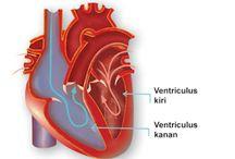Katup Jantung Bocor