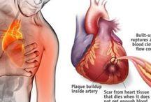 Kalp kırizi