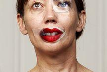 plastic surgery