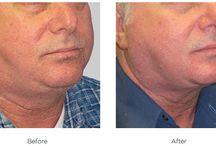 Saten Yüz Germe Öncesi & Sonrası / Saten Yüz Germe Öncesi Sonrası Fotoğraflar