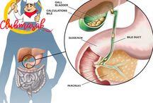 Beberapa Resep Obat Herbal Yang Ampuh Untuk Menghilangkan Batu Empedu, Resep Obat Herbal Batu Empedu