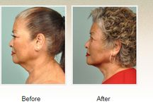 PrecisionTx™ Laser Lift / PrecisionTx™ from Cynosure allows Dr. Petti to utilize her expertise in fat removal and body contouring in smaller areas, such as the lower face and neck. Having developed her own special techniques for fat removal in other areas of the body, Dr. Petti is specifically interested in how this fat removal technology can be used to help patients achieve a younger facial appearance without the need for surgery.