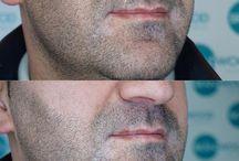 barba micropigmentação
