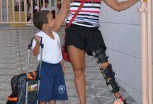Polio - Martha Cristina