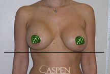 """Capsular Contracture / Capsular Contracture or Capsular Contraction"""", is a condition that may affect those who undergo breast augmentation, either electively or after breast reconstruction. It is a hardening and constriction of the breast implant capsule and causes breast firmness. In the most severe cases, it can create a painful, distorted, misshaped, or oddly positioned implant."""