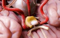 Hypothalamic Hamartomas