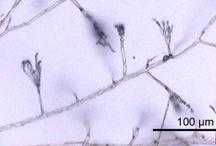 Microcosmos (Microbiology)