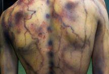 lightening scars