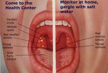sinus,menstrual pain n other health remedies