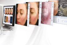 VISIA Skin Scanner