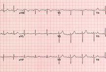 Electrocardiograma ♥