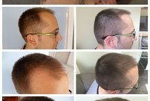 Prohaarklinik / Haar Trasplant, Haar-Implantat, Haarklinik, FUE, die Heilung, prohaarklinik