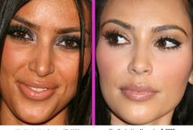 Celebrity cosmetic surgery news