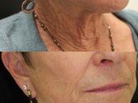 Oculofacial Plastics