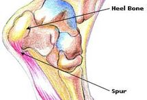 Bone Spur on my Heel Sucks:(