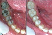 cárie de  dentes- como eliminá-los