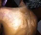 Treatment for Burns
