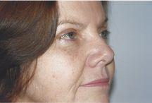 Eyelid Surgery / Cosmetic Eyelid Surgery procedures performed by Dr. Shalini Gupta