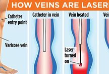 varicose veins therapy in Chicago / If your veins in the legs and feet appear enlarged and overfilled with blood, you could have varicose veins. Thankfully, there are varicose vein specialist Chicago, Orland Park, who can help in treatment.