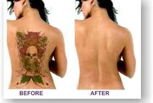 Home tattoo removal / Free video's on tattoo removal home removal with ingredients in house buy and delivered at your door http://tattoobestremoval.imsets.com
