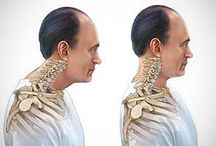 l'arthrose cervical