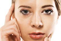 skin pigmentation cures
