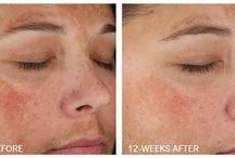 Discoloration Favorites / Sun exposure, genetics and hormones can leave your skin's tone less than perfect. These products can help clear and even your skin, erasing Melasma, sun damage, and brown spots.