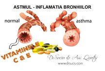 Astmul bronsic si terapia ortomoleculara - Dr.Suciu & Asociatii / Tot ceea ce trebuie sa stiti despre ajutorul pe care vi-l pot oferi nutrientii ortomoleculari in astmul bronsic!