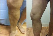 Best Sclerotherapy treatment Varicose Vein Chicago / Choosing a  best doctor for treatment of varicose veins in Chicago. the different treatments that they can do. get more details about varicose veins please call 630-974-1400 now.