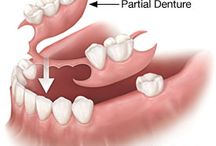 Dentures / When considering full dentures for the lower jaw, an overdenture should be discussed with your dentist as it can provide the most effective, satisfying, and longest-lasting alternative. Traditional full and partial denture options should be explored, weighing their benefits and pitfalls carefully to find the right dentures for your tooth loss.