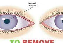Caster Oil for Eyes