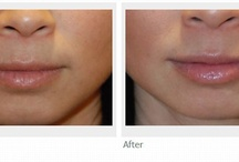 Facial Filler | Injectibles | Dermal Fillers