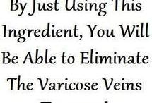 virocose veins
