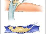 Tratamiento: Esclerosis con Espuma / Tratamiento de varices mediante esclerosis con espuma ecodirigida, sin cirugia, ni herida, ni baja.