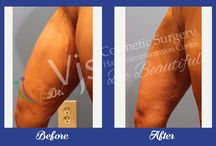 Cosmetic Surgery / Get all the details about cosmetic surgeries that we performed in this board.