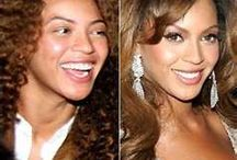 Celebrity Before and Afters