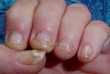 fingernail remedys
