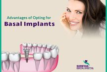 Dental Implant 3 Days / A dental implant is an artificial tooth root that is placed into your jaw to hold a replacement tooth or bridge. In Ahmedabad, Shreyas dental hospital is an expert in providing implant supported teeth in just 3 days.