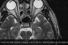 척추전문병원 더조은병원 비수술센터 소장 양희석 / 기술의 발전이 미래를 밝게 합니다 의료도 한걸음 한걸음 나아가고 있습니디ㆍ