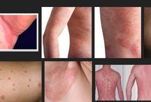 Famous People With Psoriasis
