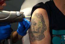 Curso Eliminacion Laser de Tatuajes / Descubre todas las fotos realizadas en la Escuela Del Tatuaje durante los cursos de eliminación láser de tatuajes y micropigmentaciones.