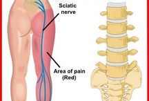 Sciatic Nerve Pain - Yoga Moves