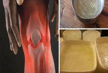 Arthritis and remedies