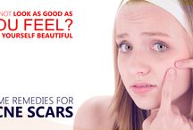 Home Remedies for Acne Scars / Home Remedies for #AcneScars@ http://bit.ly/1TRygGk